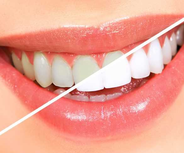 Knowing About Teeth Whitening